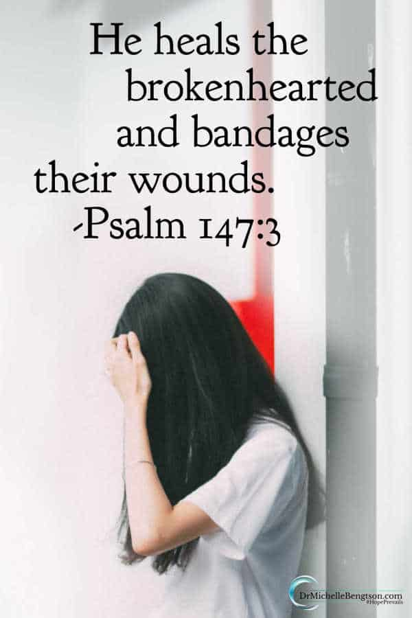 "Jesus came to heal us. ""He heals the brokenhearted and bandages their wounds"" (Psalm 147:3). Read more for 8 lessons scars teach us. #Jesus #Bible #faith"